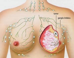 Лечение метастазов при раке груди