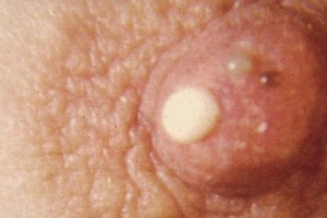 Признаки рецидивов гака груди