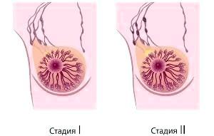 Рак груди 2 стадии