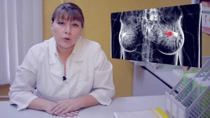 Лечение рака груди 3 стадии