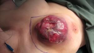 Рак груди - запущенный